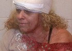 professora_agredida_lapis