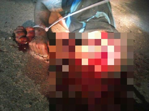 Resultado de imagem para Corpo é encontrado com mãos amarradas em Camaçari