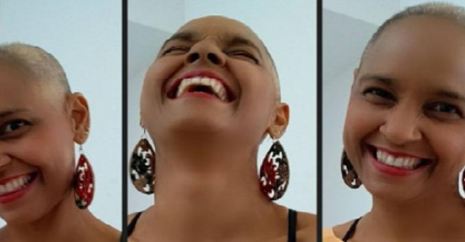 Com câncer, ex-vocalista da Cheiro de Amor raspa o cabelo