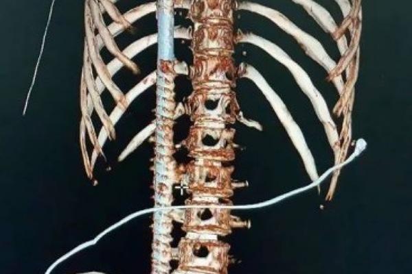 'Foi um milagre', diz médicos que socorreram jovem perfurado por barra de ferro